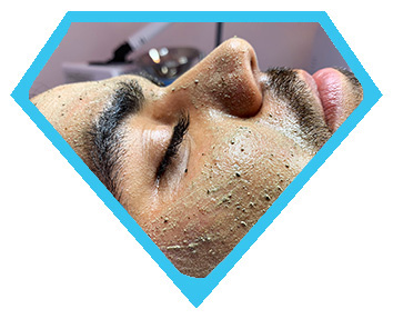 Male client getting coral reef retexturing peel in Los Angeles at Face of Jules