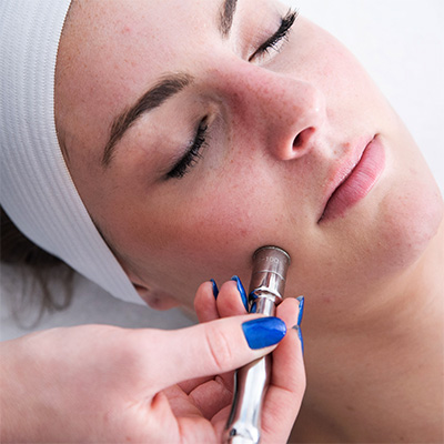 Microdermabrasion at Face of Jules Los Angeles Facial Spa
