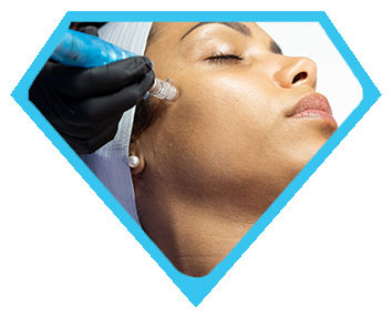 Microneedling Treatment in Los Angeles at Face of Jules